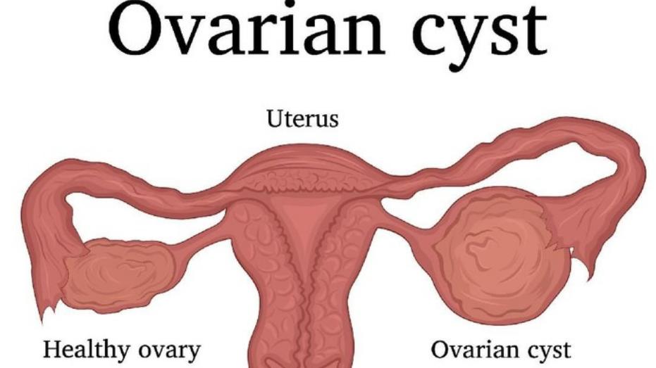 Cara Sembuh Dari Kista Ovarium Dengan Ramuan Dari Mahkota Dewa